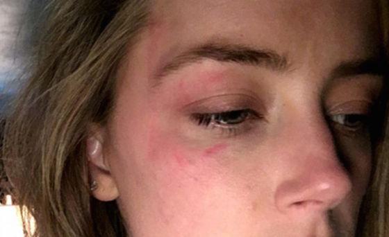 Amber Heard anklagar Johnny Depp för misshandel.